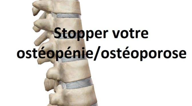Comment stopper votre ostéopénie ou votre ostéoporose